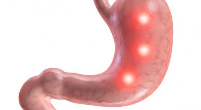 Язвенная болезнь: причины и симптомы