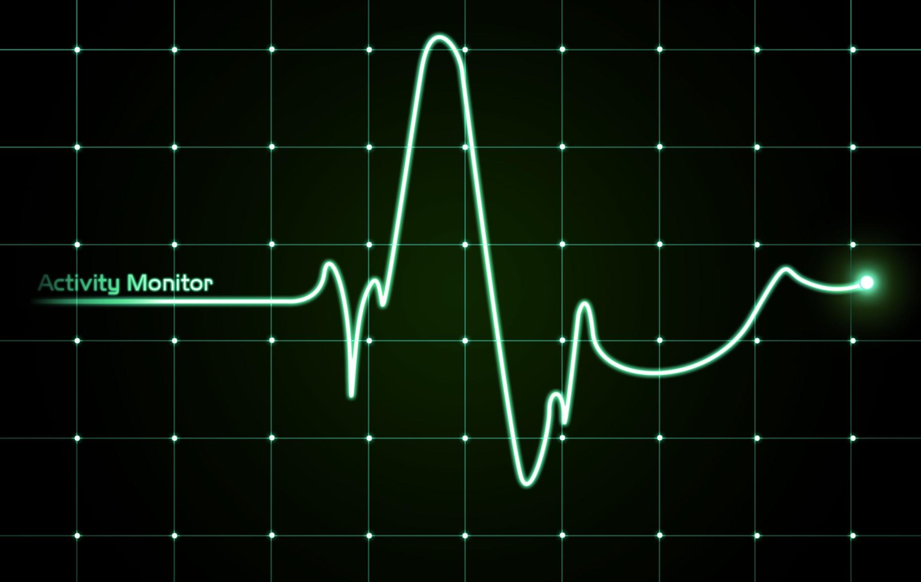 Сердцебиение Учащенное фото